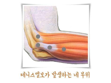 팔꿈치 통증   더바른신경외과 의원