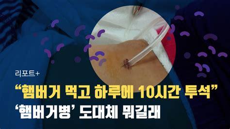 """[리포트+] """"햄버거 먹고 하루에 10시간 투석""""…'햄버거병' 도대체"""