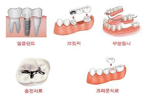 치아보험가격&치과보험적용