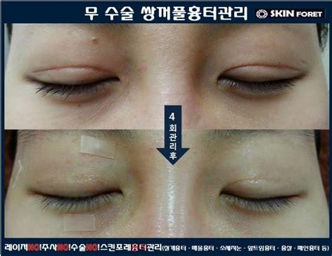 """쌍수흉터+소세지눈 수술없이 개선되는 """"놀라운변화"""" : 네이버"""