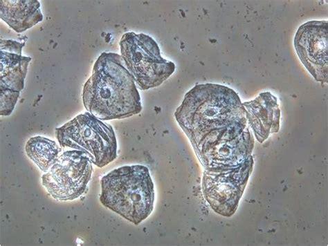 Phase-contrast   현미경으로 보는 광학세상