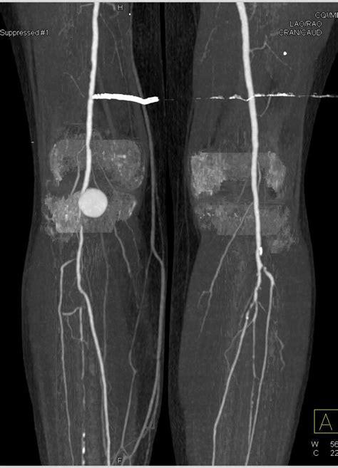 Popliteal Artery Aneurysm on Dual Energy CTA - Vascular
