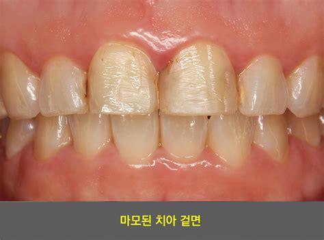 미니쉬치과병원 - 미니쉬비니어치료 :: 치아노화 걱정이시죠
