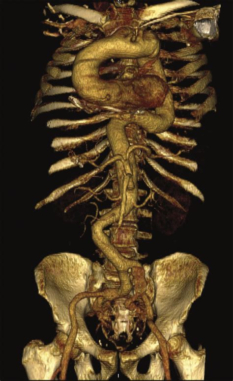 Arterial Tortuosity Syndrome With Multiple Intracranial