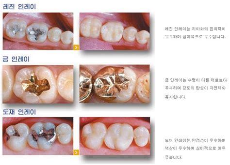 치과보철치료 - 인레이가 필요한 경우와 인레이의 종류