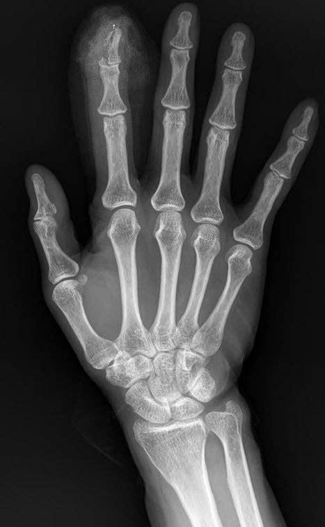 부산행정사 051-851-5459 :: 수지골절, 손가락 골절