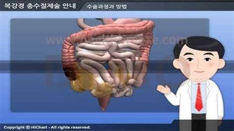 맹장수술방법 - 우먼헬스