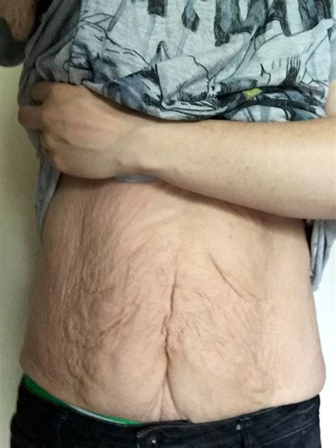 Excess Skin Removal Surgery | Medical Crowdfunding with