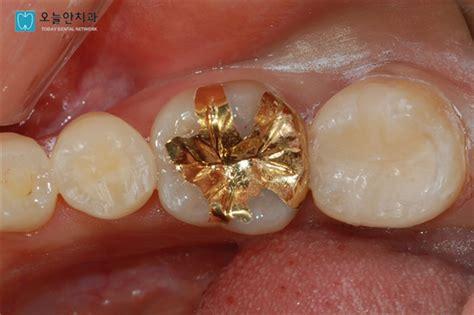 살며 사랑하며 :: 치과 치료 인레이, 온레이, 크라운 종류 및 비용
